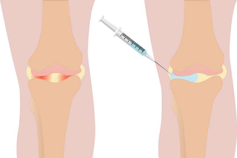 Knock Out Knee Pain with a Simple Injection